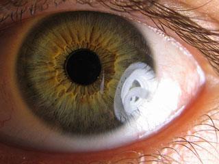 eye320[1]